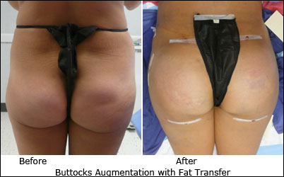 Brazilian Buttocks Enhancement with Fat Transfer uses your body's fat where you want it-Dr. Ramos, Chesterfield, MO